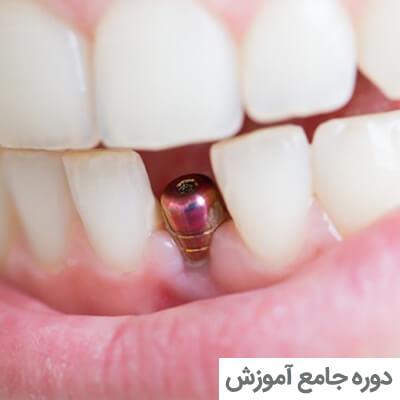 دوره جامع آموزش ایمپلنت های دندانی