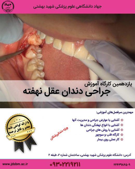 کارگاه آموزش جراحی دندان عقل نهفته