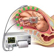 کارگاه آموزش تفسیر نوار قلب جنین (NST)